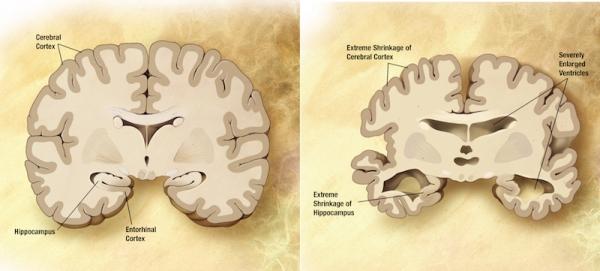 Cervelli con e senza Alzheimer