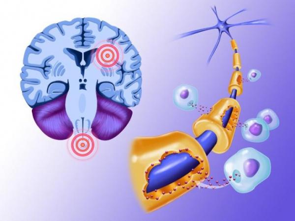 Sclerosi multipla.jpg