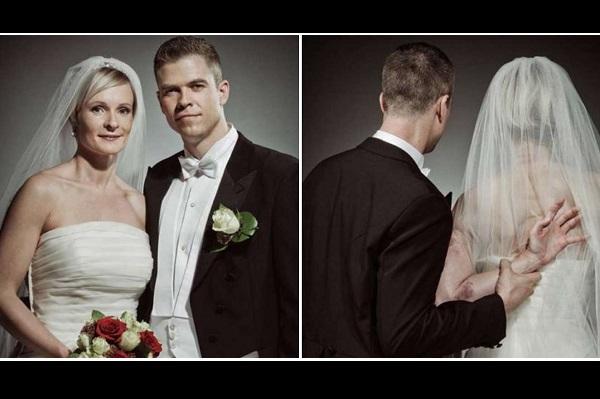 Le due foto della campagna contro la violenza promossa in Norvegia