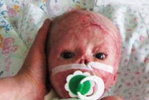 Il bambino ustionato da un mal funzionamento dell'incubatrice