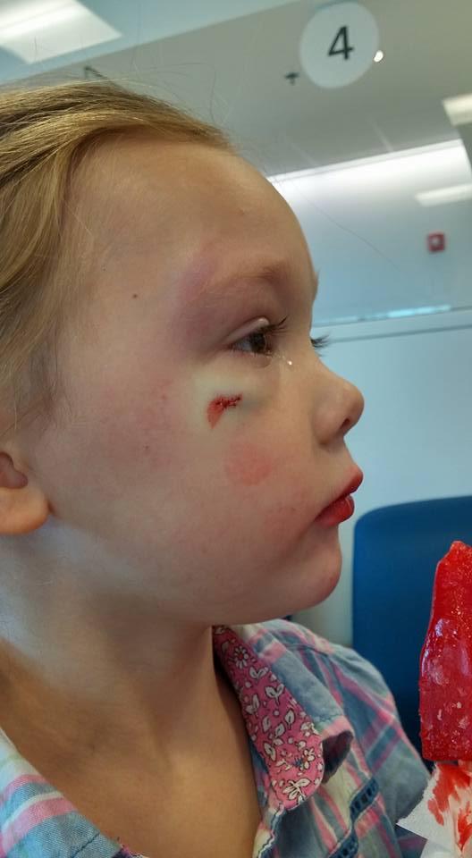 Bambina picchiata