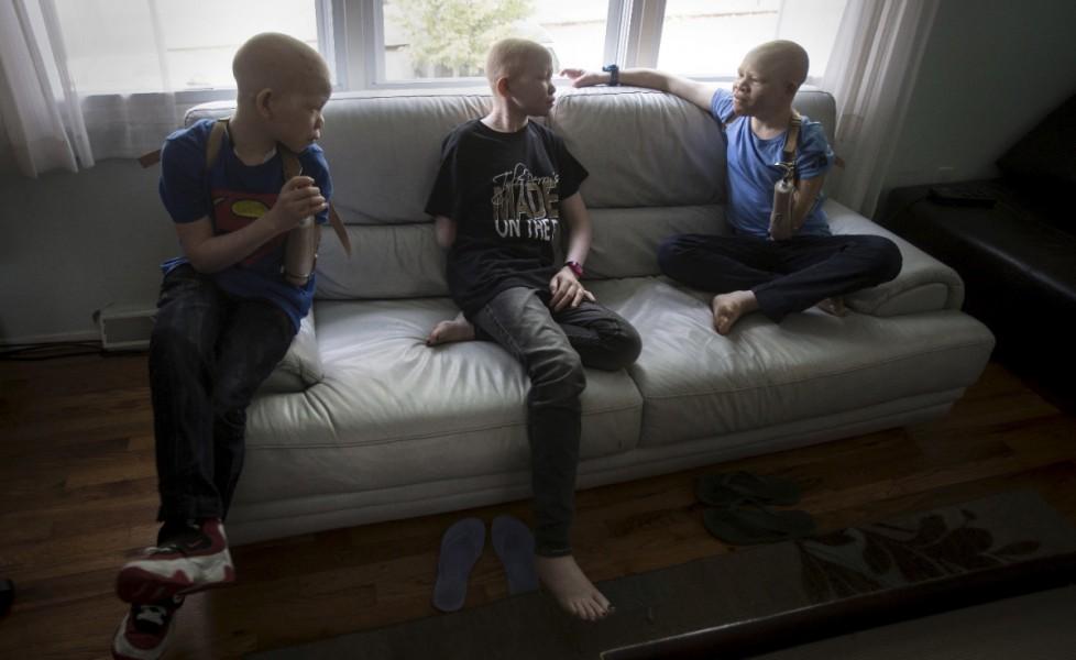 Protesi per i bambini albini della Tanzania