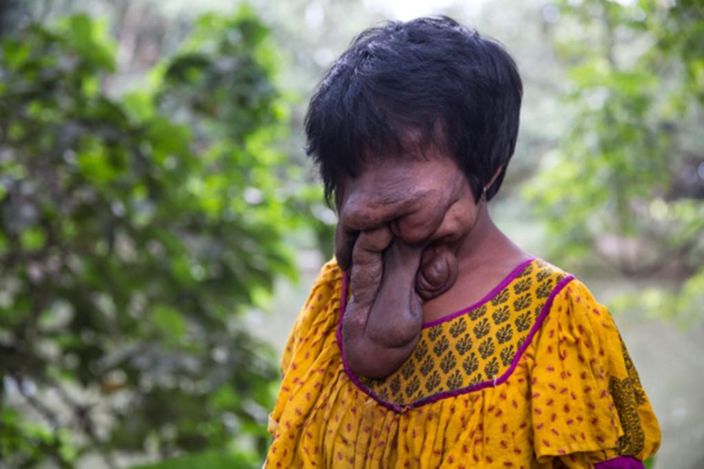 Khadija, la ragazza senza volto