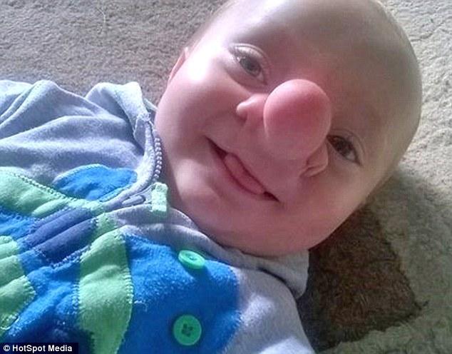 Ollie, nato con una parte di cervello nel naso