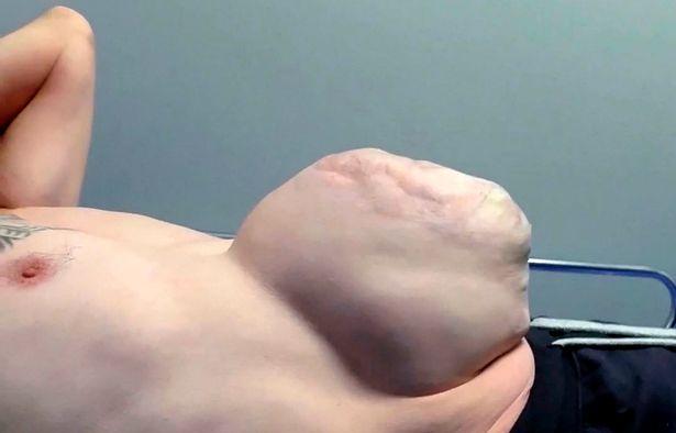 Ernia delle dimensioni di un pallone da calcio