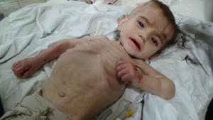 Madaya, la città degli scheletri ambulanti