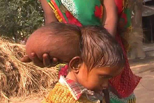 Bambina nata con tumore alla testa