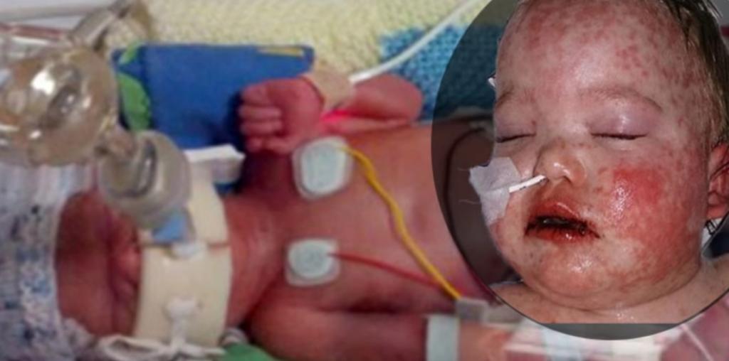 Bambino rischia la vita a causa dell'ibuprofene