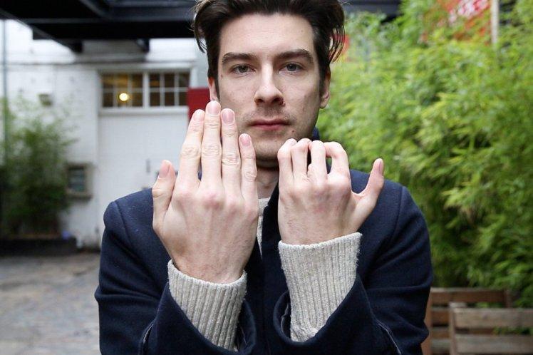 Richard e la mano deforme