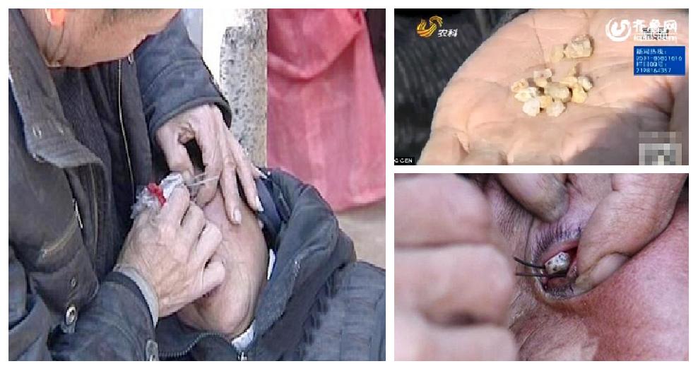 Donna piange lacrime di pietra: i medici non sanno curarla