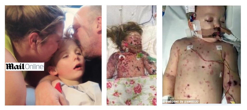 Foto choc di bimbi morti per meningite per promuovere campagna vaccinazioni