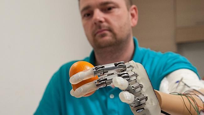 Recupera il tatto con un dito bionico