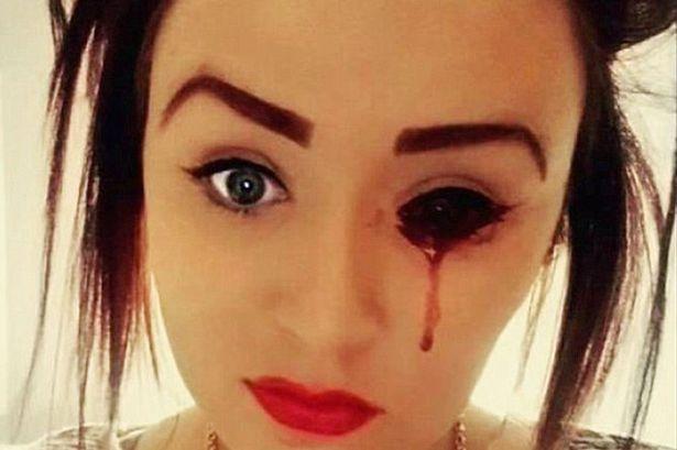 Ragazza che perde sangue dall'occhio