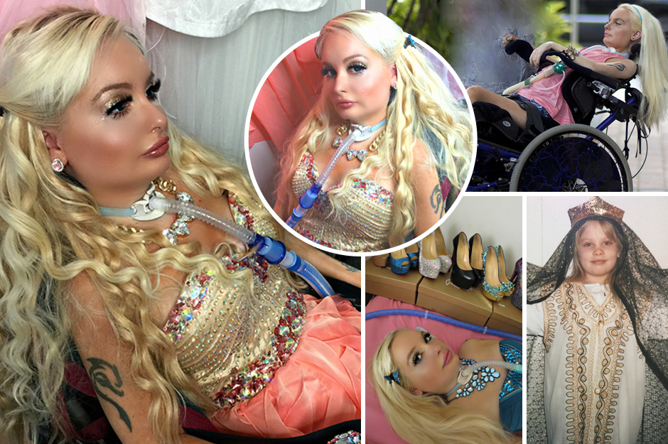 Tetraplegica diventa la prima Barbie umana, ecco perchè