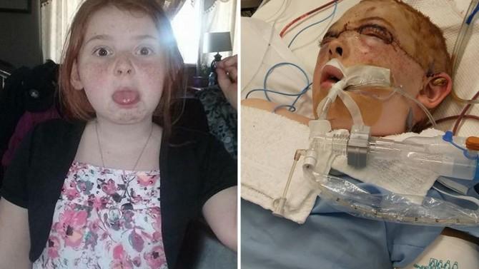 Si incastrano capelli nella giostra: 11enne rischia la vita