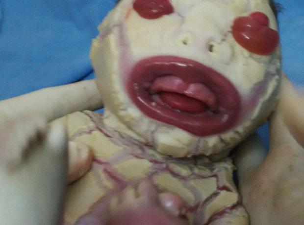 India, bimba nasce senza pelle