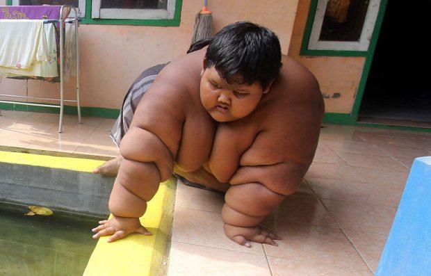 A 10 anni pesa quasi 200 kg, i genitori temono possa morire