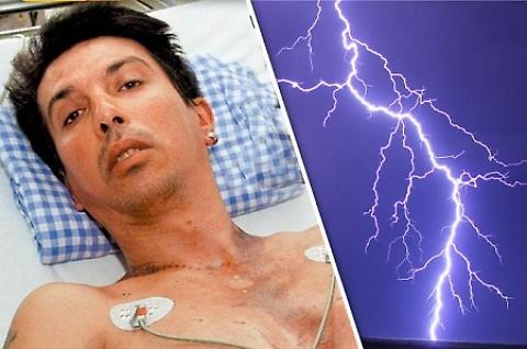 Zoran, l'uomo colpito dal fulmine
