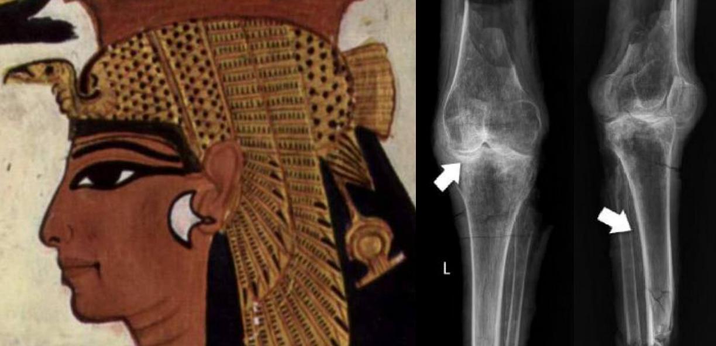Identificati i resti della regina Nefertari