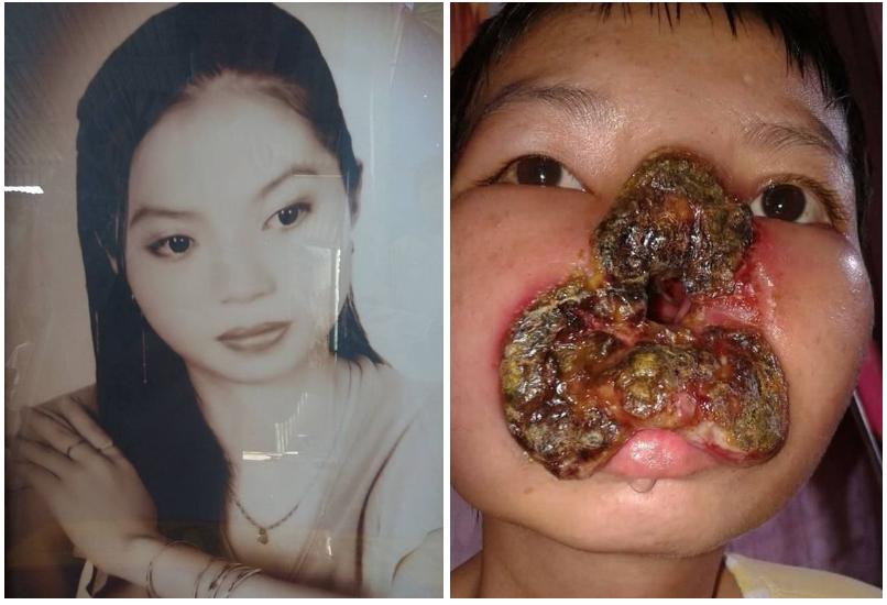 28enne muore a causa di un batterio che le ha divorato la faccia