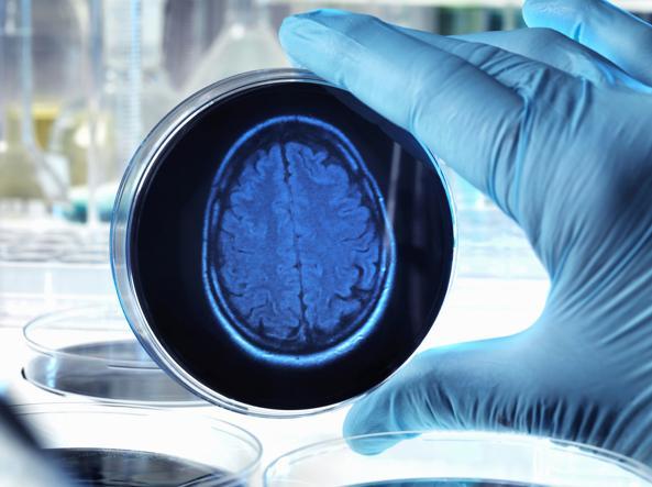 Sindrome di Alzheimer