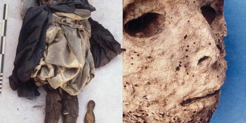 Napoli, la mummia di San Domenico aveva epatite B