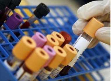 tumori esame sangue