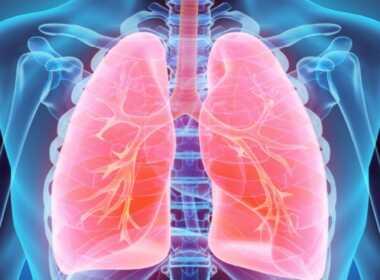 Trapianto di polmone da donatori vivi